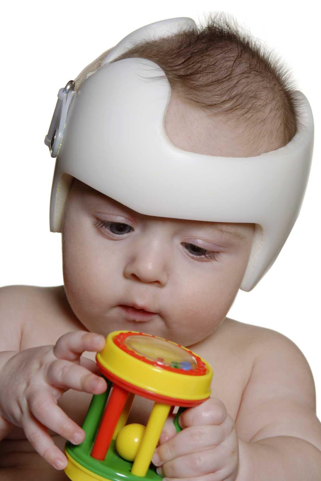 plagiocephalie iStock_000012167148_Large 1600